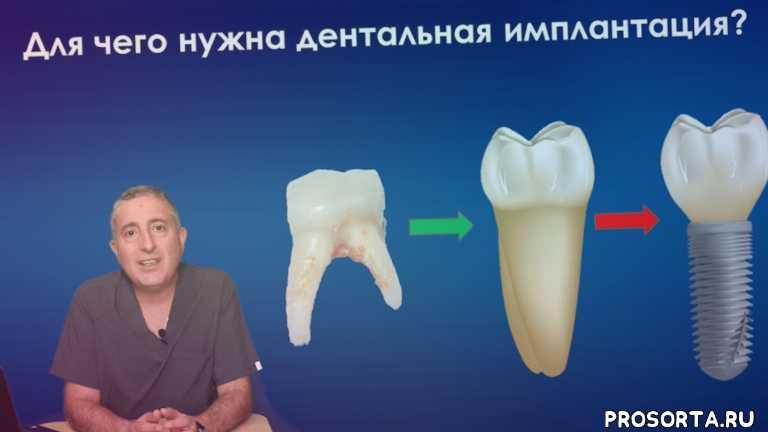 english speaking dentist, rauf aliev, dentist, dental implant, dentistry, импланты зубов, стоматолог, альтернатива имплантации