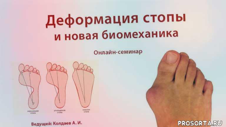 Новая биомеханика стопы